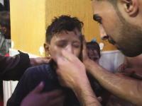 シリア軍がダマスカス近郊に化学兵器を使用か。被害を受けた子供たちの映像が公開される。