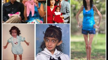 Lizzie Velasquez – The Girl Who Can't Gain Weight