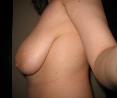 unusual puffy tits