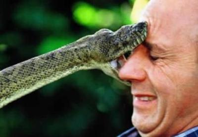 アメリカでガラガラヘビに噛まれた場合の治療請求書がヤバい…高すぎるアメリカの医療費