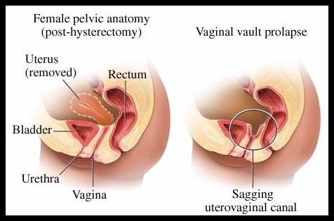 prolapsed uterus in people