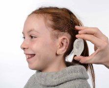 Für Kinder mit Fehlbildungen am Ohr können 3D-gedruckte Implantate erstellt werden