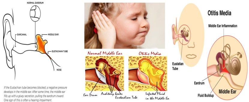 The eardrum becomes tense and does not vibrate so well when hit by sound waves 2