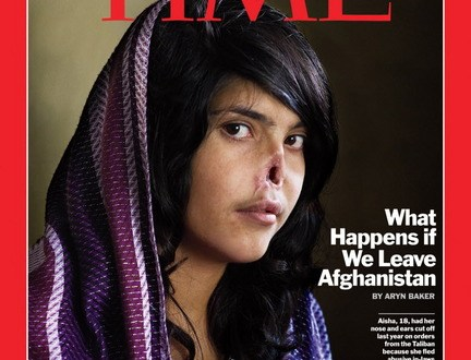 Victim of spousal violence in Afghanistan, where mutilation of women's faces is common