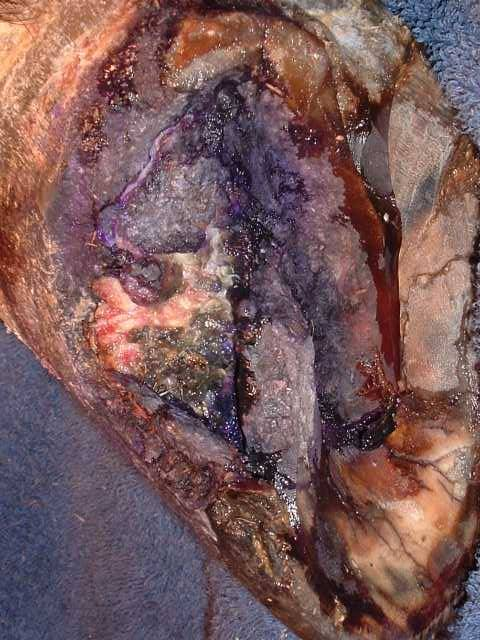 Blue waffle disease pictures female And when you could try to find the photo of blue waffle infection  we  notify you to stay clear of that  It s visually stunning photo however will  certainly