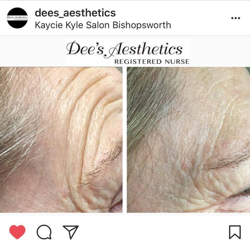 Get amazing anti-ageing results with @dees_aesthetics