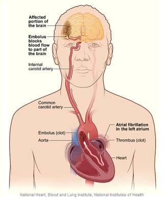 Illustration of A-Fib stroke and brain clot.; Overview of Atrial Fibrillation, a-fib, afib, a fib