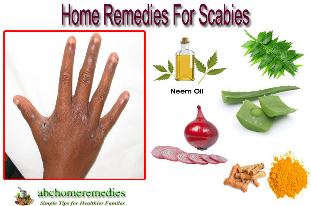 Natural Remedies To Get Rid Of Scabies