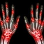 normal human's hands