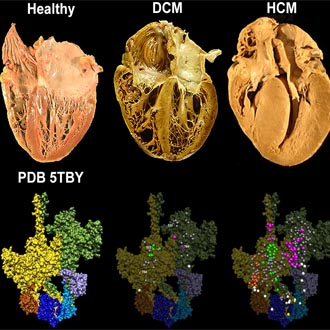Effects of myosin variants on interacting-heads motif explain distinct hypertrophic and dilated cardiomyopathy phenotypes