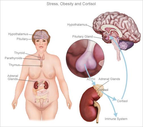Como el cortisol alto funciona en contra de la pérdida de peso