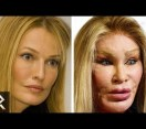 Worst Cases Of Plastic Surgery Obsession