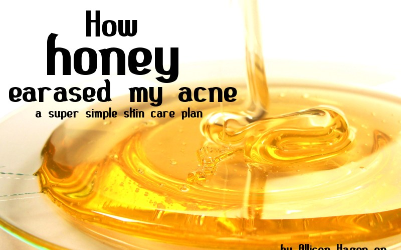 How Honey Erased My Acne