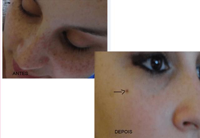 antes e depois, manchas de sol