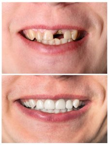 cosmetic dentistry charlotte nc implants invisalign veneers zoom! whitening dentist 28277