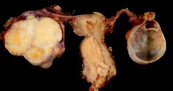 Cervical Carcinoma with Adnexa. Photo credit: Ed Uthman