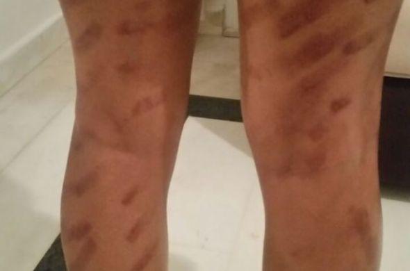 عملية تجميلية لإزالة الشعر  تحول جسد نادية من أكادير إلى شوارع من الحروق الخطيرة