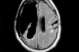 hemispherectomy_-450x434-jpg.jpg