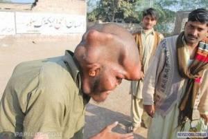 muslim inbreading