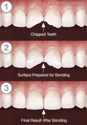 Bonding step by step image