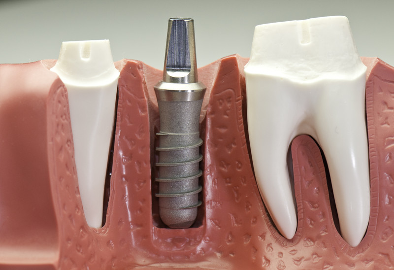 Complete Dental Implant Step By Step Guide For 2019