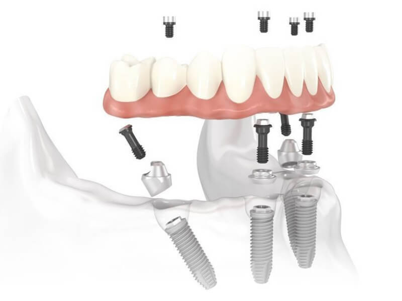 All-On-4 Implant Parts