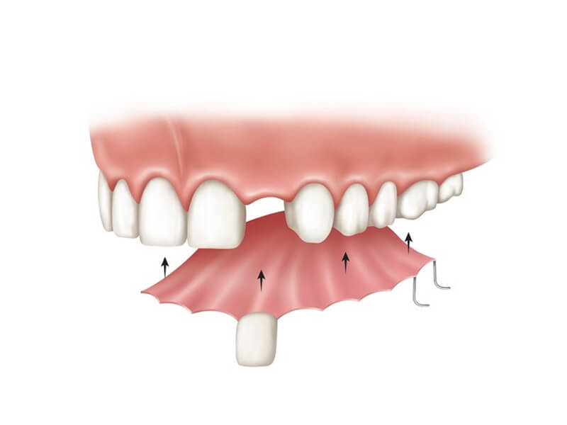 Partial Dentures For Single Tooth Replacement