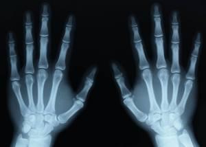 X–Rays