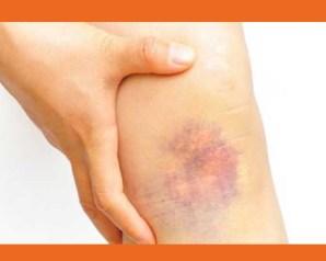 ماذا تعنى الوان الكدمات بالاوعية الدموية   ؟