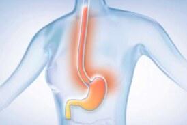 Le reflux gastrique expliqué, c'est par ici !