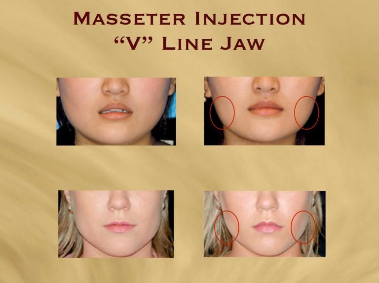 v-line-masseter-injection-copy