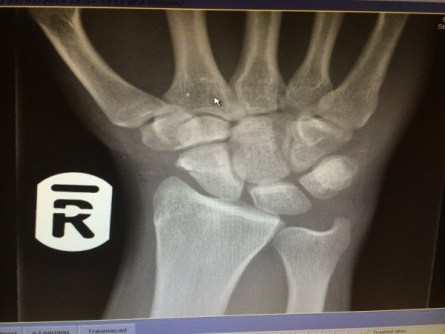Andrew Burdett's X-ray showing the broken scaphoid in his hand.