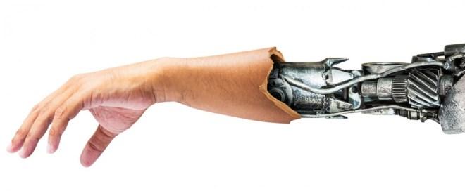 Halb Mensch, halb Maschine: Als Cyborgs bezeichnet man Menschen, deren Körper dauerhaft durch künstliche Bauteile ergänzt werden. Ein ganzer Unterarm als Maschine ist eher einem Roboter zuzuordnen, aber wir werden uns in wenigen Jahren Chips implementieren lassen, die unsere Lebenserwartung drastisch erhöhen. Aber ein wenig grsuelig ist das schon (Foto: Shutterstock[fotoslaz])