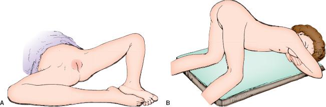 tween girl genitals exam
