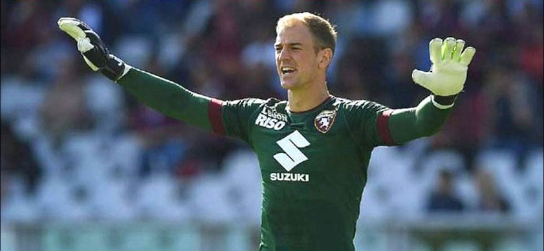 Joe Hart – A Midsummer Night's Dream