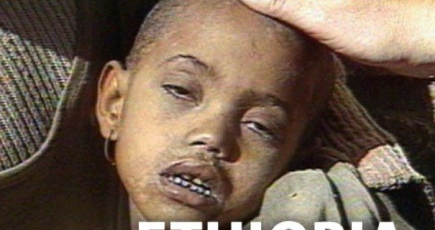 Ethiopian Starvation