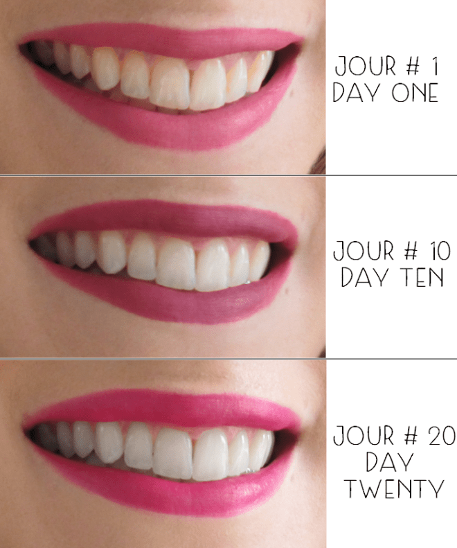 3D-whitestrips-30-days