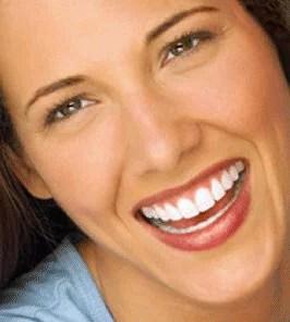 bright-smile
