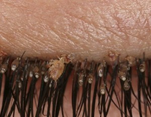 pediculosis-of-the-eyelashes