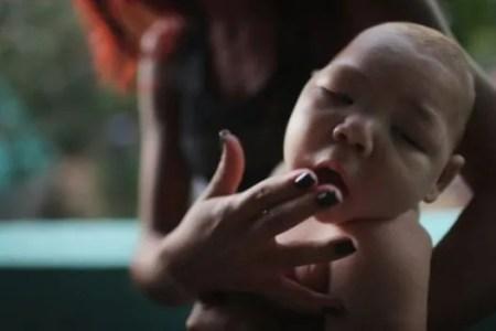 Ταξιδιωτικές οδηγίες και κρούσμα ιού Ζίκα στην Δανία