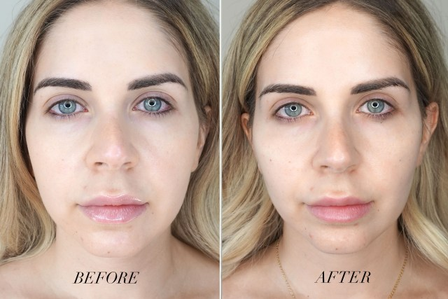 Before and after cheek fillers at Dr. Minuk's clinic in Winnipeg