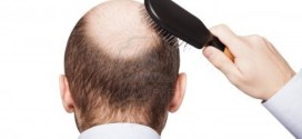 Does Too Much Sun Or Heat Exposure Affect Hair Growth?