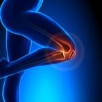 patellofemoral pain syndrome anatomy
