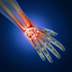 Arthritis Wrist