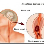 Methods-of-stroke-prevention--150x150