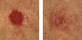 diy stain remover 6 DIY Carpet Stain Remover