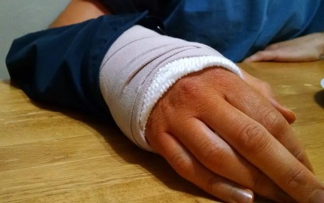 Noel's hand, still orange from surgery. He jokes it's his spray tan.