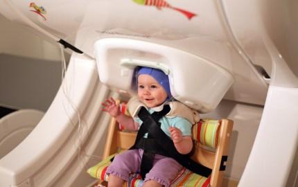 magnetoencefalografia-bebe