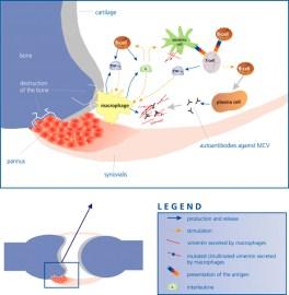 MCV in rheumatoid arthritis pathogenesis
