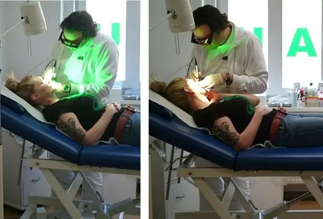 My Rosacea Laser Treatment Tale